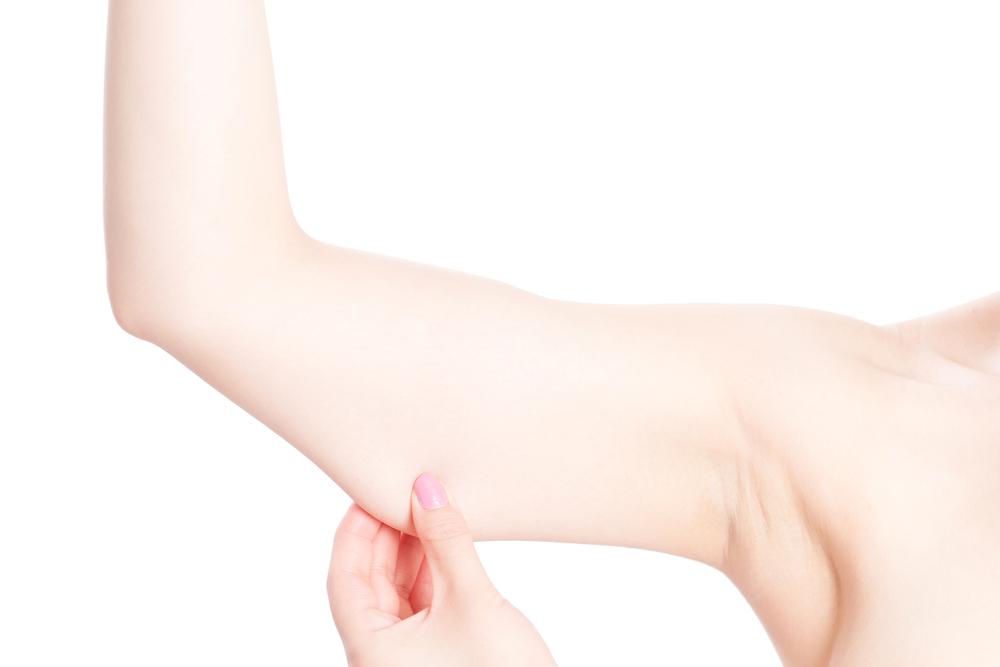 【口コミ・体験談】二の腕・太ももにメソセラピー(脂肪溶解注射)をしました。