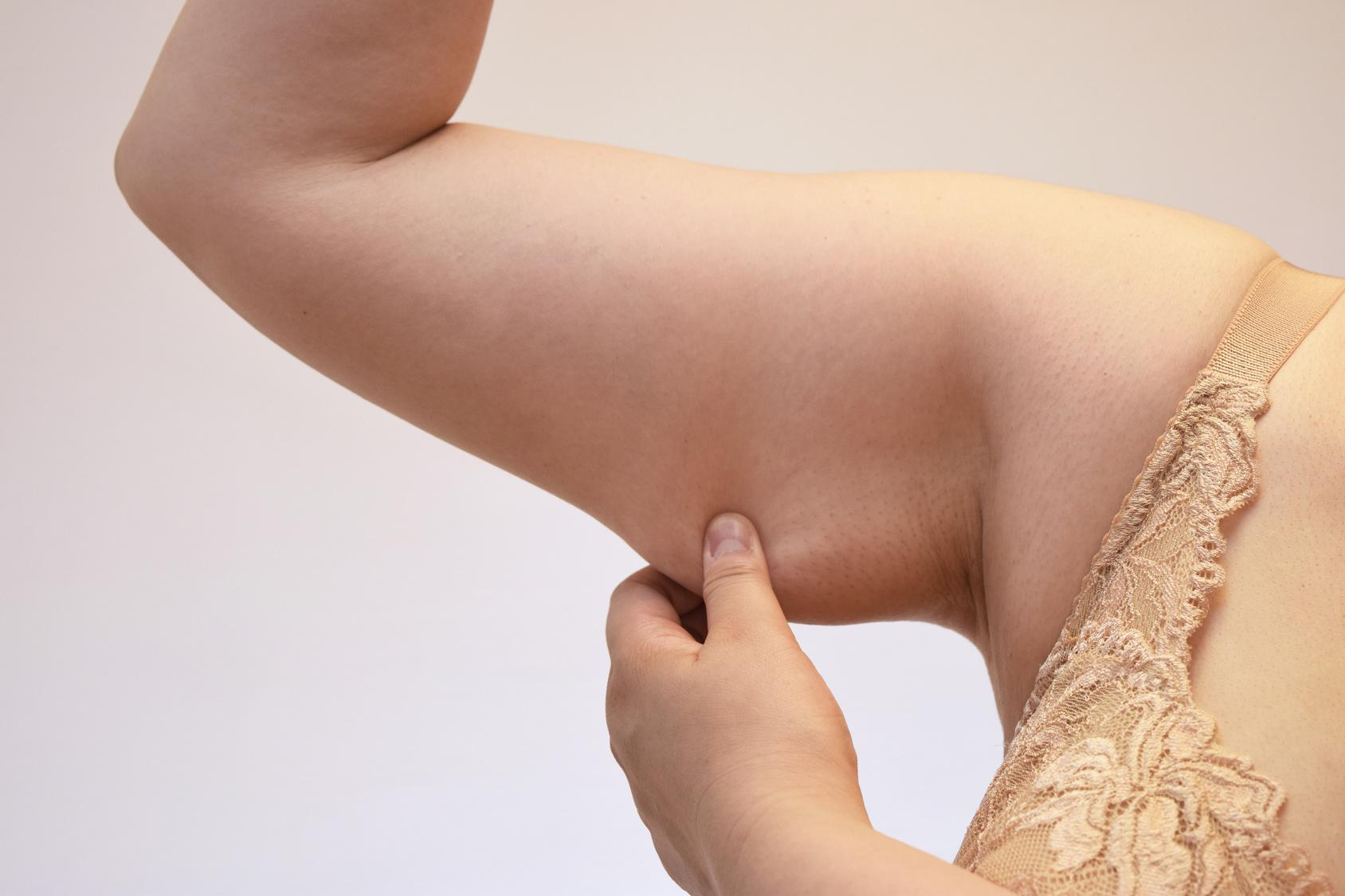 ベイザー脂肪吸引の修正