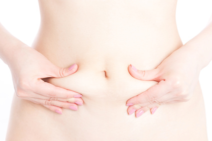 脂肪吸引の効果