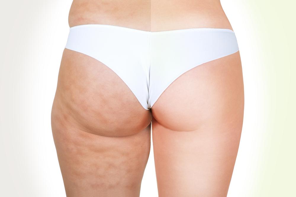 浅層脂肪吸引のアフターケア