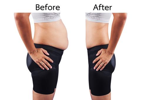 脂肪吸引 チューメセント法のメリット