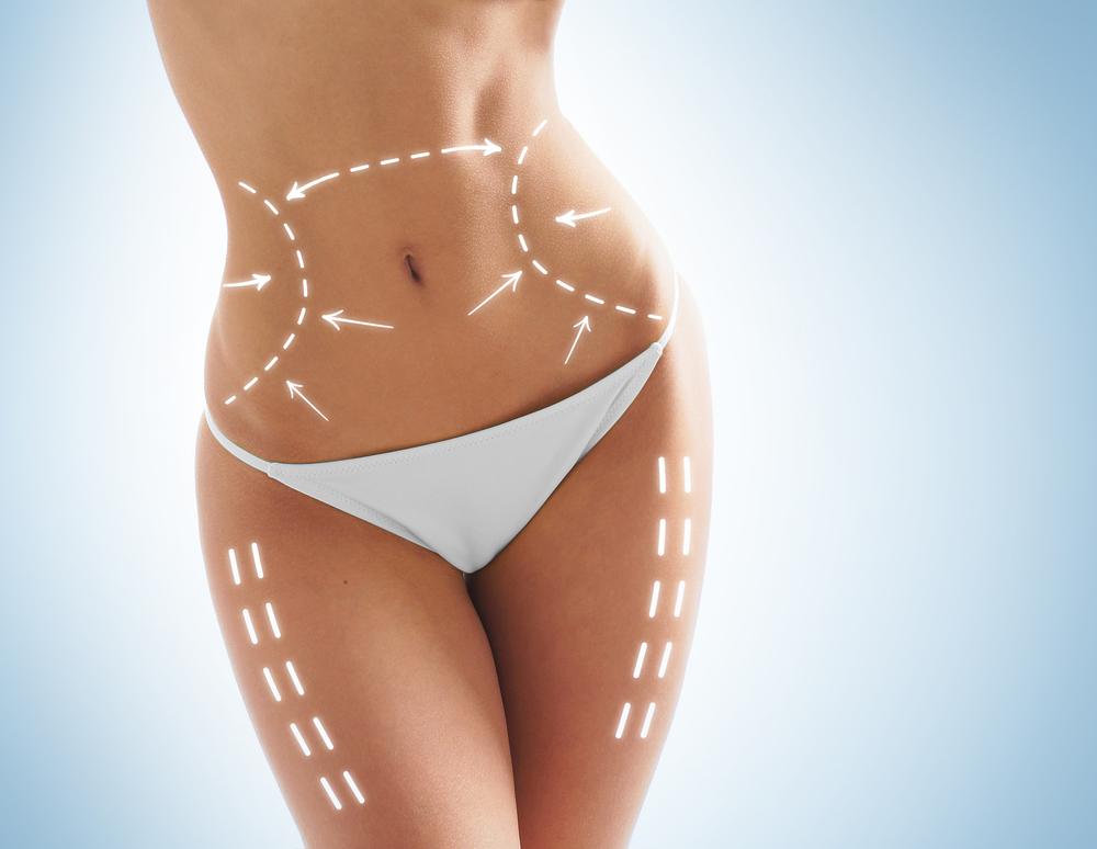 脂肪吸引 ハイパーインフレート法の失敗