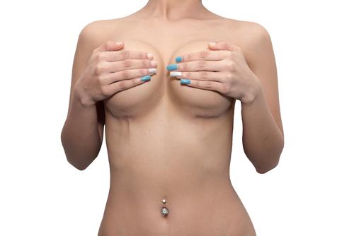 胸部の脂肪吸引のデメリット