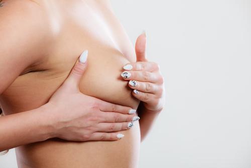 胸部の脂肪吸引のメリット