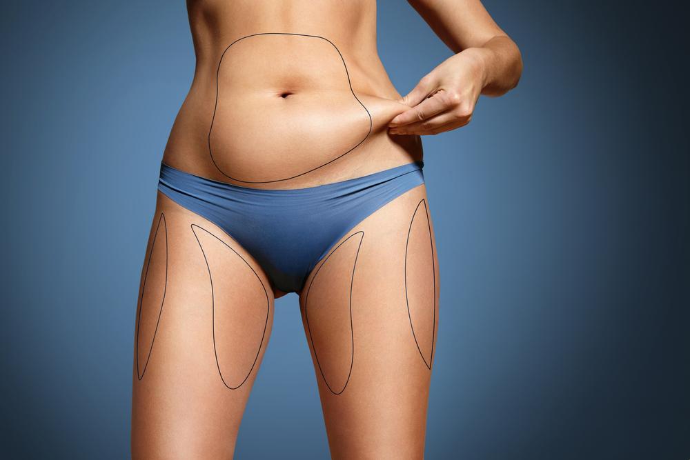シリンジ脂肪吸引のデメリット