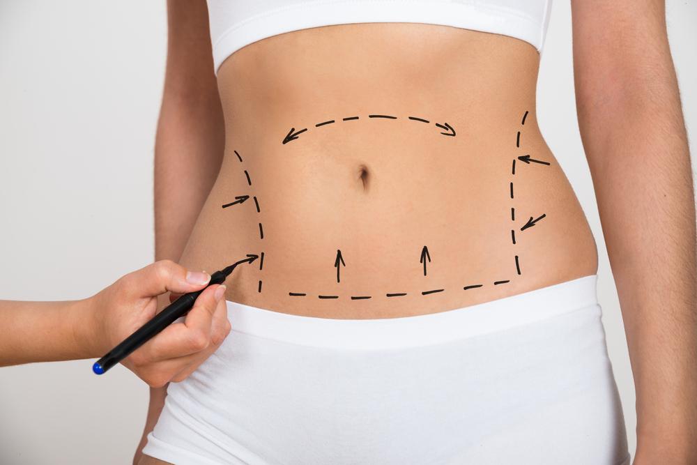 体内外式脂肪吸引のデメリット