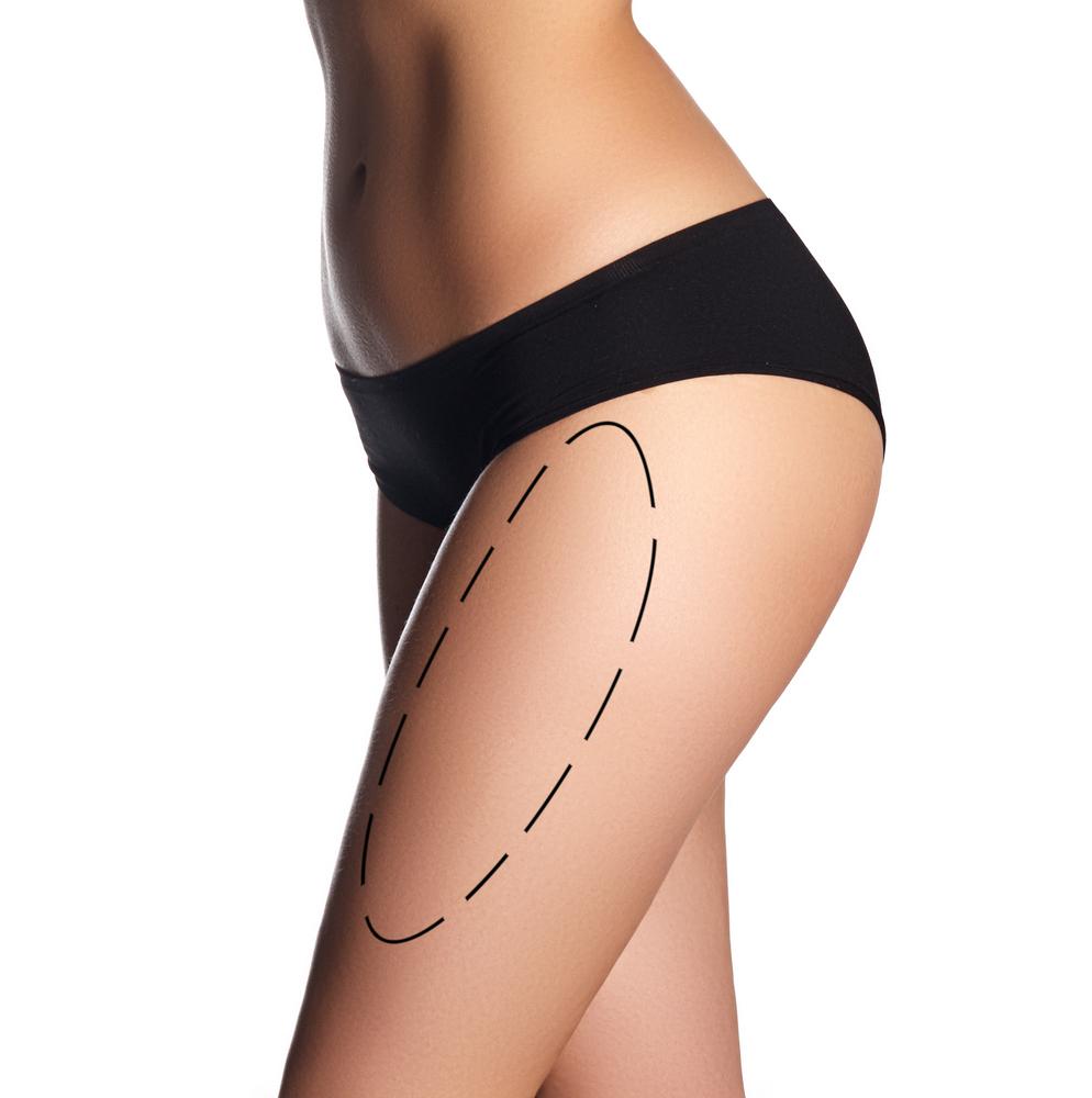 ウルトラゼットの名医の条件や本当に痩せるのかを確認