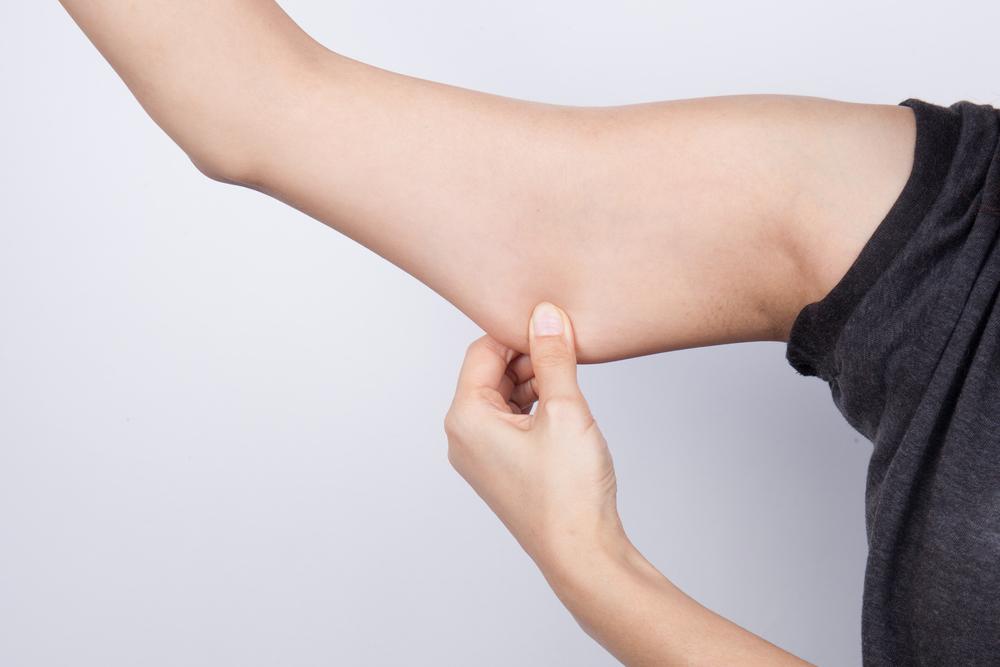 【口コミ・体験談】二の腕の脂肪吸引をしました。
